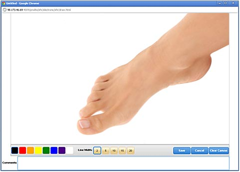 MediDraw EHR Drawing Tool